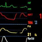 Czym jest badanie EKG?